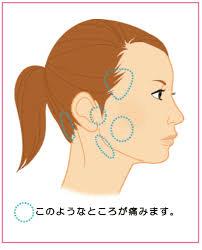 顎関節症の圧痛点