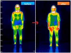 赤外線サーモグラフィー女性