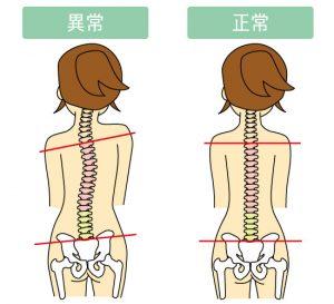 ショルダーバッグは骨盤や背骨がズレる
