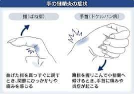 腱鞘炎のメカニズム