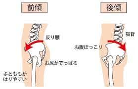 骨盤の前傾後傾