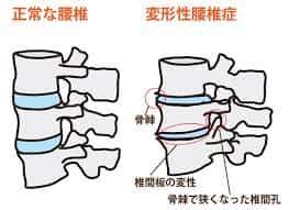 背骨の老化