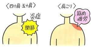 四十肩五十肩は肩関節の炎症