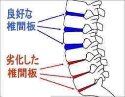 椎間板の老化